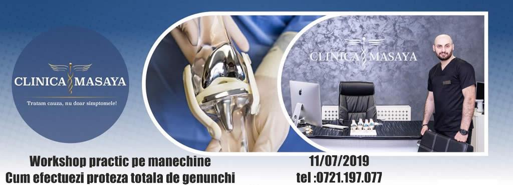 Workshop Practic  despre Artroplastia totala de genunchi ( proteza de genunchi )