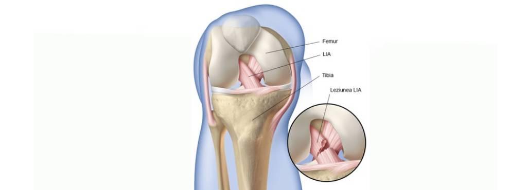 Ligamentul incrucisat anterior sau LIA