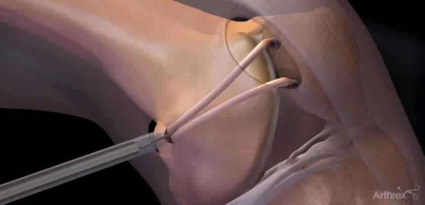 Reconstructia de ligament femuro patelar medial