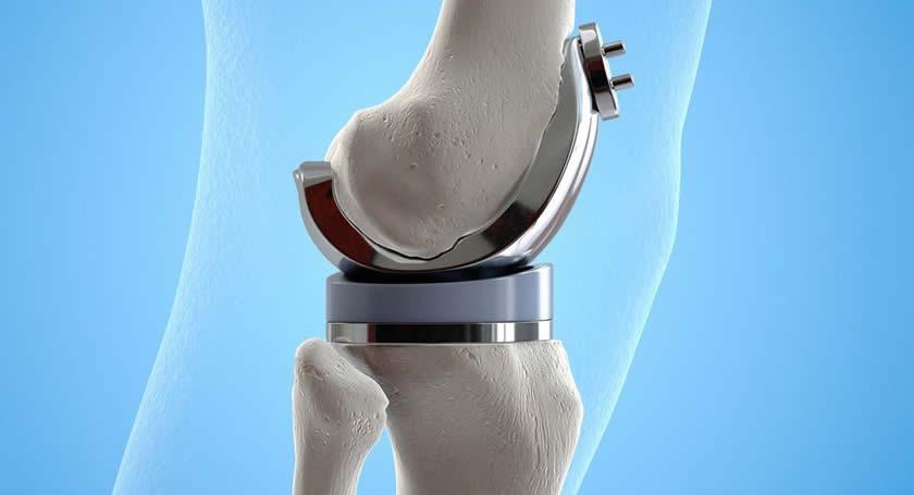 Recuperarea dupa proteza de genunchi