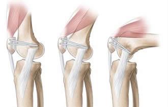 Reconstructie ligament femuro patelar medial