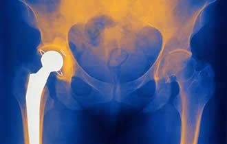 Recuperarea dupa artroplastia totala de sold