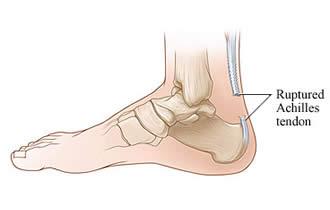 Recuperarea dupa ruptura tendonului achilian