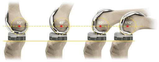 pret proteza genunchi personalizata
